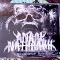 Anaal Nathrakh - Tape / Vinyl / CD / Recording etc - Anaal Nathrakh - The Candlelight Years 3CD