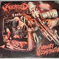 Aborted - Coronary Reconstruction - LP
