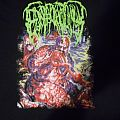 Epicardiectomy shirt