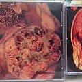 Blasted Pancreas – Carcinoma CD and TAPE Tape / Vinyl / CD / Recording etc