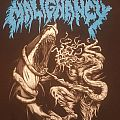 Malignancy - 20 Years of Technical Brutality - SS - L