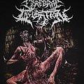 Cerebral Incubation - TShirt or Longsleeve - Cerebral Incubation Ascariasis Evisceration shirt
