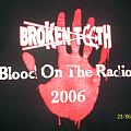 Blood on the Radio