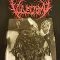 Vulvectomy - TShirt or Longsleeve - Vuvlectomy - Syphilic Desmembered Slut
