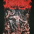 Gangrenectomy - Abhorrent Necrotic Harvester of Dismembered Human Flesh TShirt or Longsleeve