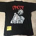 Cancer - TShirt or Longsleeve - Cancer 1992 Shirt