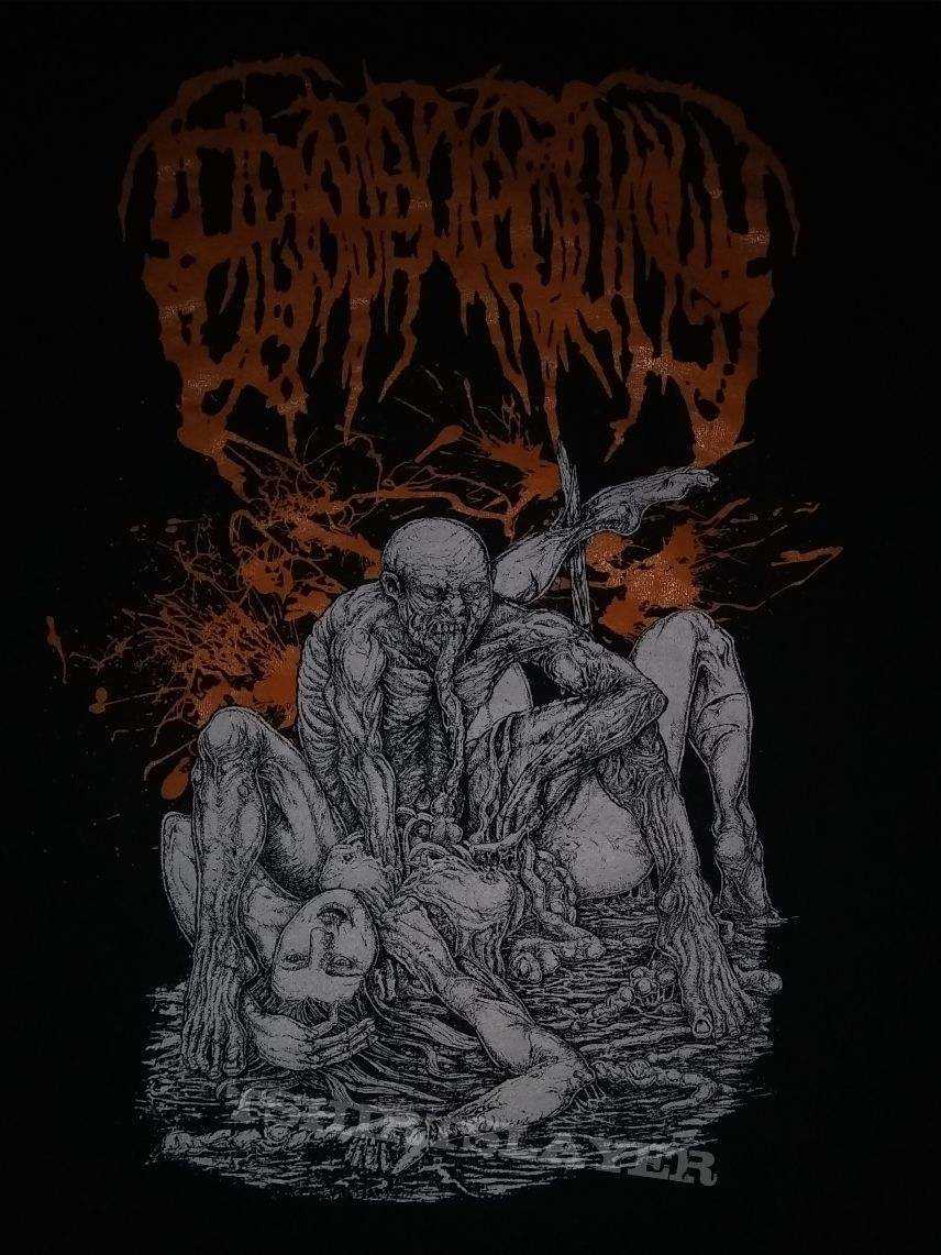 Epicardiectomy gobbling the erupted intestinal mash shirt