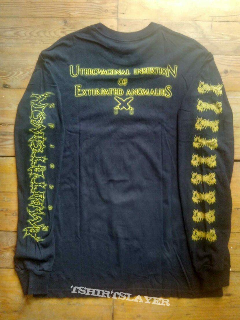 CEPHALOTRIPSY Uterovaginal Insertion Of Extirpated Anomalies longsleeve shirt