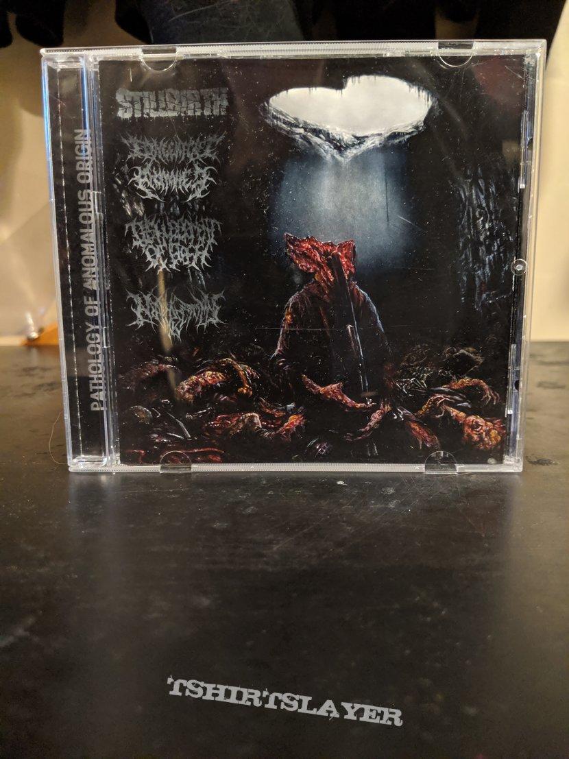 Pathology Of Anomalous Origin Split CD